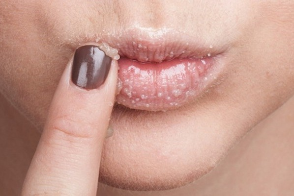 Eczema on the Lips