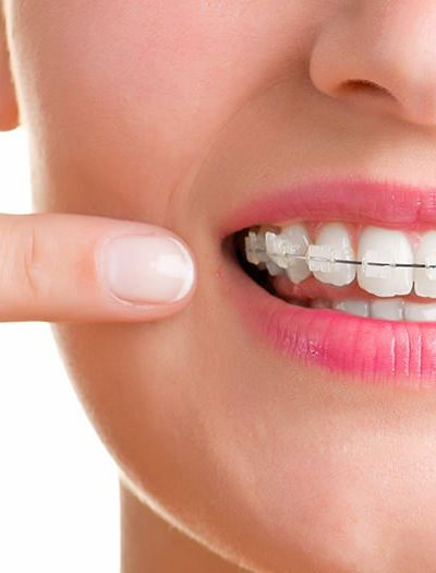 Roles of Dental Care Professionals in the Community