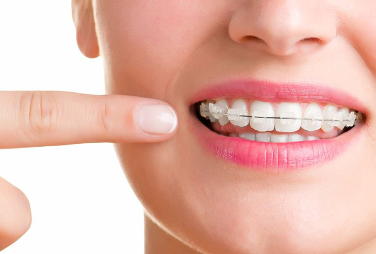 Your Guide to Orthodontics and the Treatment Options Specialists Offer
