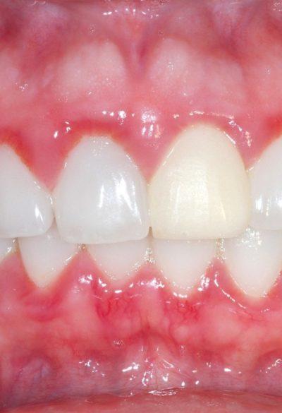 Treatment for Gingivitis in Children