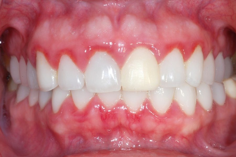 Treatment for Gingivitis in Children