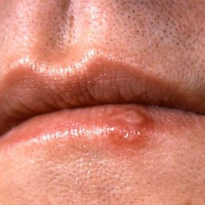 Can You Prevent a Syphilis Infection? Here Are Some Tips