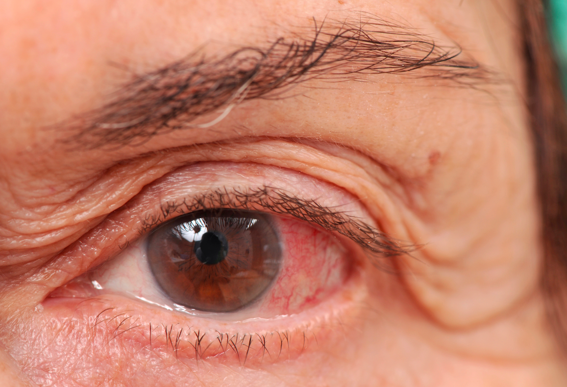 Positive Contribution of Cannabis in the Fight Against Glaucoma