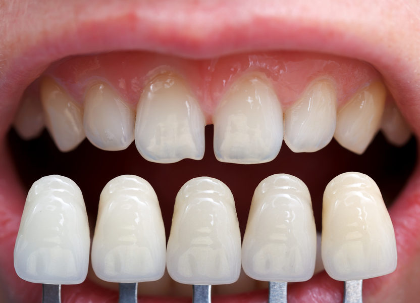 Cosmetic Dentistry with The Art of Dentistry
