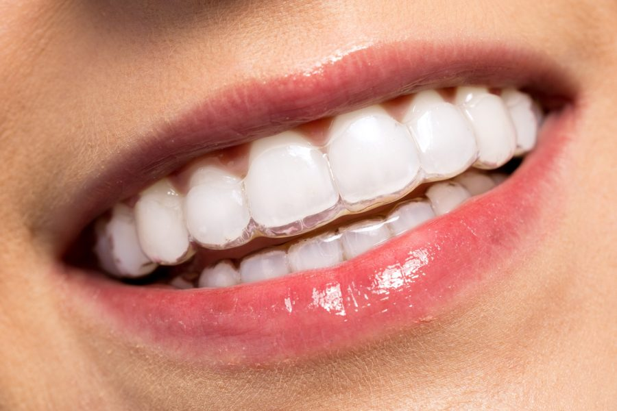 Invisalign – Orthodontic treatment to brighten your smile