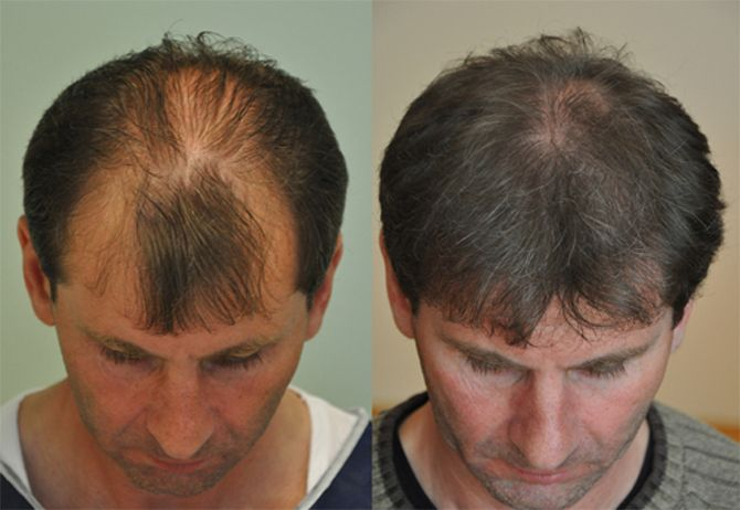 treat pattern baldness