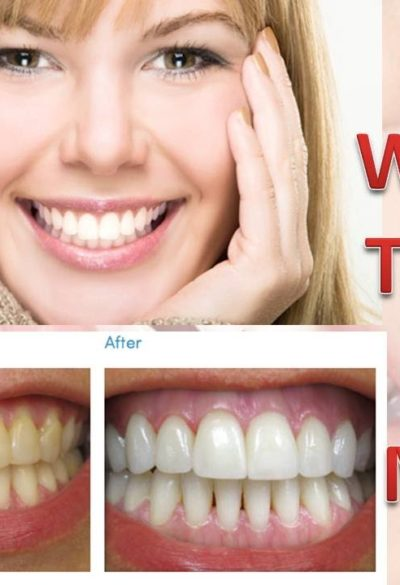 Cheaper Laser Teeth Whitening- How to Find The Cheap Laser Teeth Whitening