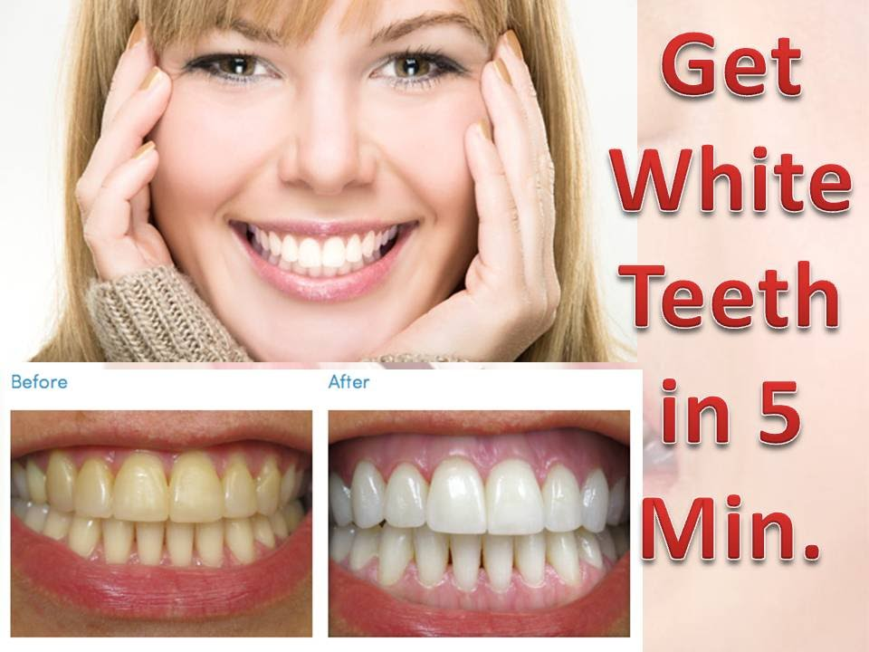 Cheaper Laser Teeth Whitening