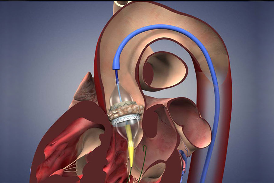 Aortic Valve Replacement Now Made Very Simple