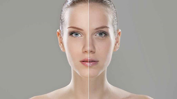 Healthy Dose of Botox