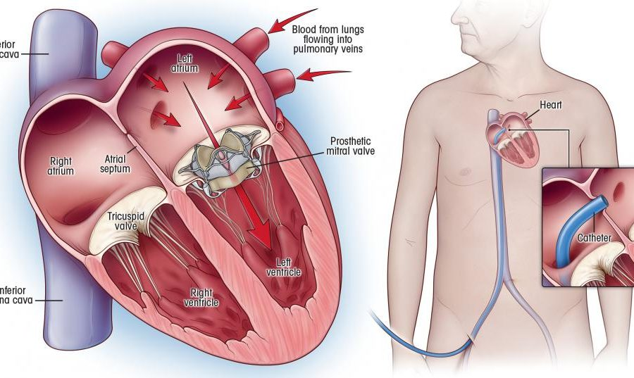 An Overview about Mitral Valve Surgery