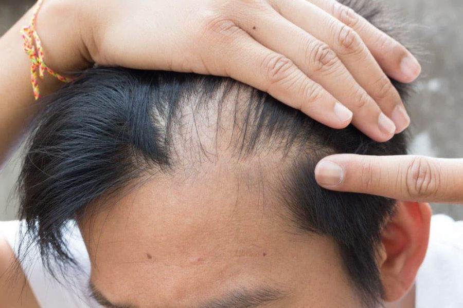 Which Medications Can Cause Hair Loss?