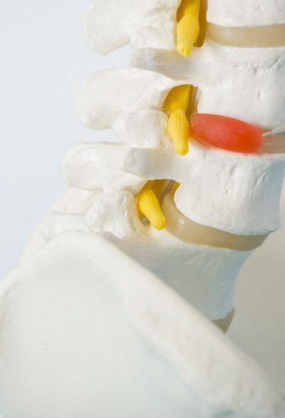 Can a Car Accident Cause Degenerative Disc Disease?