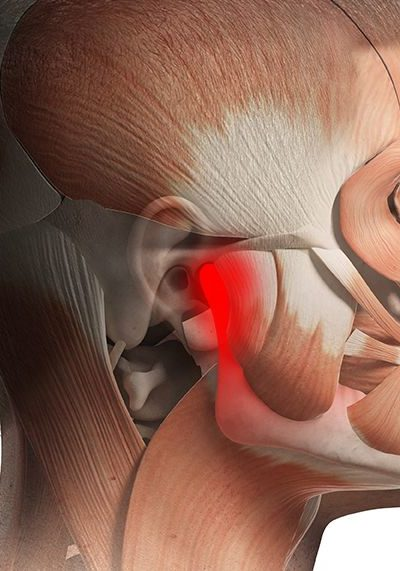 Find The Best Professional for your TMJ and Jaw Pain problems