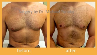 Life Easier With Breast Reduction