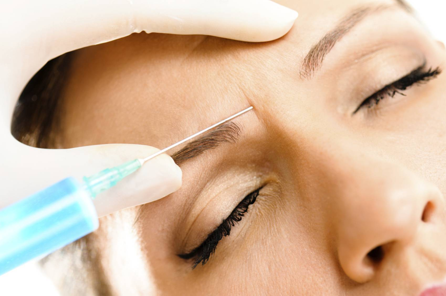 Recovery after a Botox Procedure