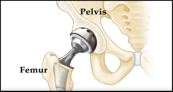 Hip Replacement Procedure
