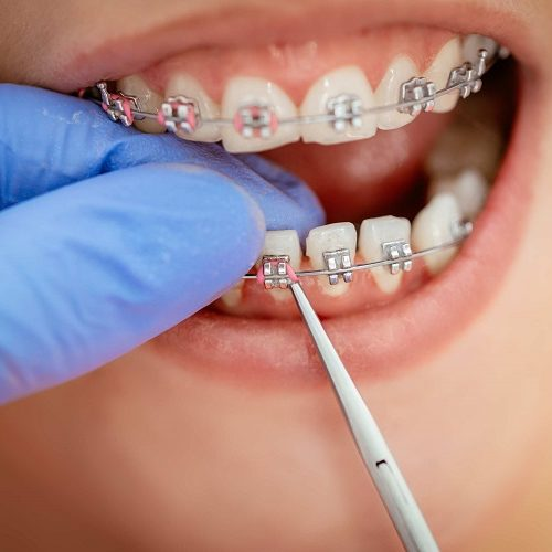 Invisalign- Here is How to Get the Best Treatment in Essex?